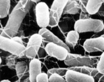 大腸菌|オゾンの除菌|ウイルス除菌サービス実施中|取手・守谷・土浦でリフォームなら幸和建築工房